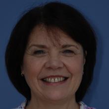 Gill Dillon MBE